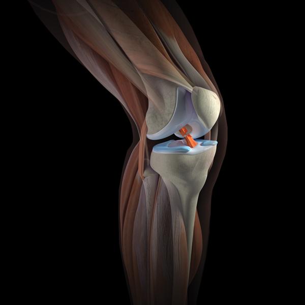 Суставы и кости чем опасен хруст суставов